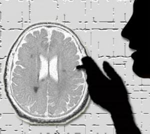 Beyni hasta eden alışkanlıklar